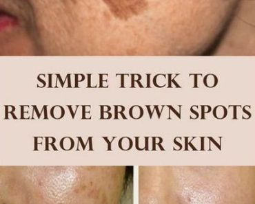Famous Dermatologist Revealed Remove Brown Spots On Face And Skin With This Simple Trick Healthbeauty4usa Com Deep Wrinkles Baking Soda Face Spots On Face