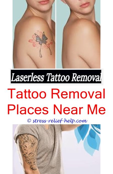 8 best Tattoo Removal Cream Reviews images on Pinterest
