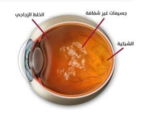 Pin By Eyes Illnesses On طبيب عيون Adl Ashtray