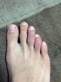 足の指先 腫れ