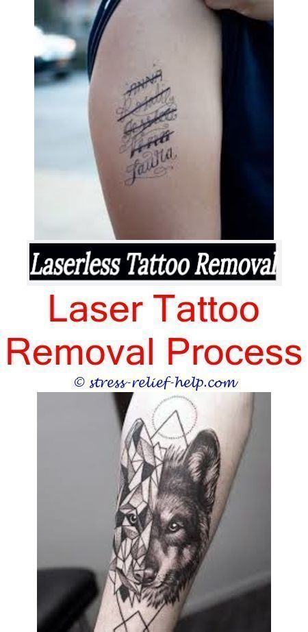 Tattoo Cover Up How Much Is It To Get A Tattoo Removed Yahoo Where To Get Tattoo Surgically Removed Can Tattoos Laser Tattoo Cover Tattoo Tattoo Removal Cost