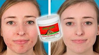 I Tried A 10 Step Korean Skincare Routine For A Month Youtube Healing Clay Clay Face Mask Indian Healing Clay