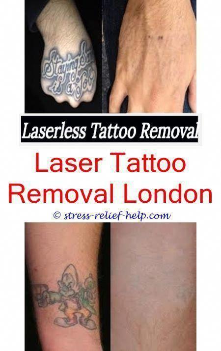 Tattoo Removal London Can My Tattoo Be Completely Removed