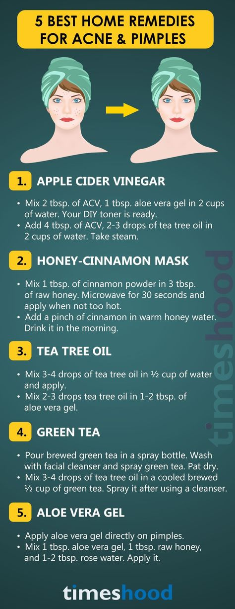 Top 5 Home Remedies to Get Rid of Acne Fast