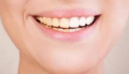 Como Clarear Os Dentes Com Bicarbonato Emagrecerto Clarear