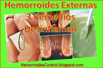 Medicamento para desinflamar las hemorroides
