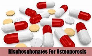 36++ Over the counter osteoporosis medicine ideas