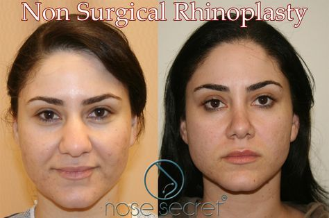 Non Surgical Nose Job For Wide Nose Nosesecret Comprises Of A Couple Of Bended And Agreeab Nose Contouring Rhinoplasty Nose Jobs Rhinoplasty Before And After