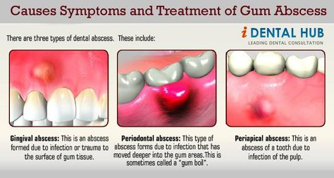 Protect Your Gums! + How to Get Rid of Gingivitis Symptoms
