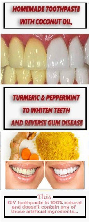 46++ Turmeric gel for gums inspirations
