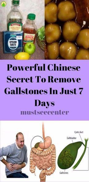 liquid diet and gallstones