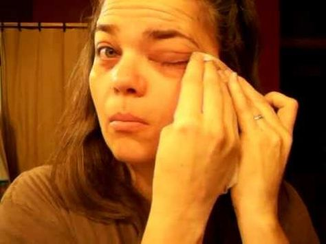 How to use antiviral essential oils for Pink Eye
