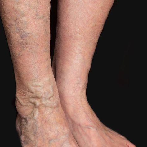 varicoseveins Varicose veins are large...