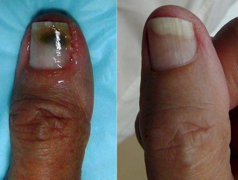 Of thumb fungus on nail side