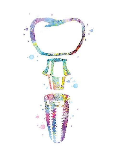 Implant Affiche Cadeau Dentiste Dent Art Decoration Cabinet