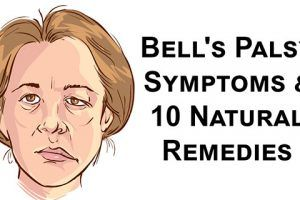 can a keto diet cause bells palsy
