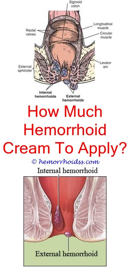 Picture Of Dog Hemorrhoids : picture, hemorrhoids, Essential, Hemorrhoids?, Hemorrhoids, Treatment,, Bleeding, Hemorrhoids,