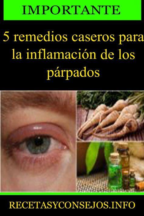5 Remedios Caseros Para La Inflamación De Los Párpados Remedios Caseros Para Inflamación Párpados Consejos Beneficios Parpados Remedios Caseros Remedios