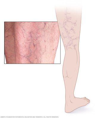 fallen varicose