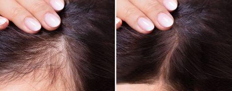 310 Hair Ideas In 2021 Hair Natural Hair Styles Diy Natural Products