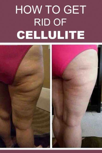 Pin On Cellulite Natural Remedies