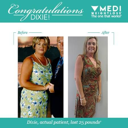 Dixie Lost 25 Pounds With The Help Of Medi Weightloss Excellent Job