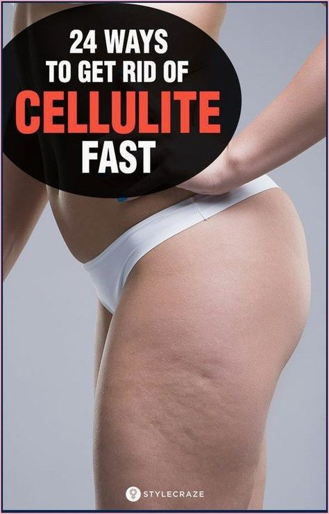 Get Rid Of Cellulite Fast And Naturally