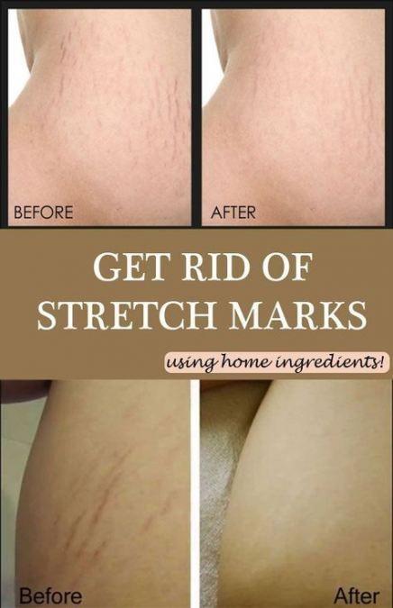 c1cdc96b5bc5154c1b91005057ac9c3d - How To Get Rid Of Stretch Marks Under Armpits