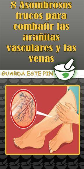 8 Asombrosos Trucos Para Combatir Las Arañitas Vasculares Y Las Venas Trucos Arañas Vasculares Venas Health Tips Health Natural Health