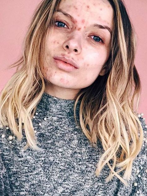 10 Inspiring Images That Prove Acne Is Not Ugly