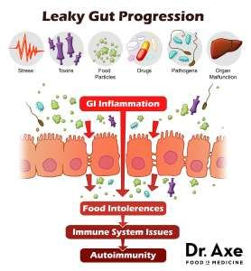 Leaky Gut Progression Dr Axe Real Food With Dana Heal Leaky Gut Leaky Gut Leaky Gut Syndrome