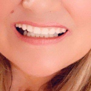 Missing Tooth Kit Front Flipper Denture Resin Denture Teeth Etsy In 2020 Veneers Teeth Dental Impressions Dental Adhesive