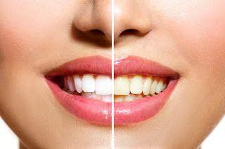 Islam Garis Lurus Gigi Kuning Lebih Kuat Dibanding Gigi Putih