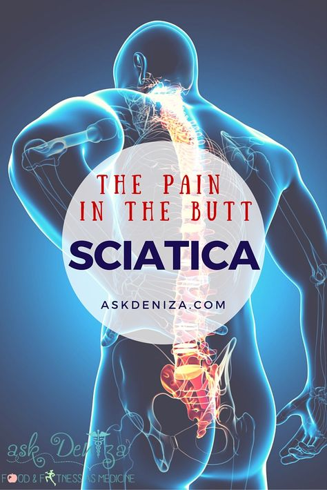 The Pain in the Butt - How to heal sciatica - home remedies