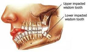Pin On Wisdom Teeth
