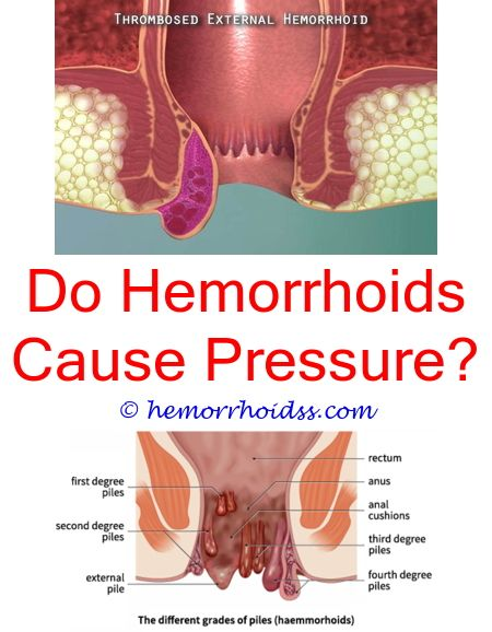 Does Hemorrhoids Go Away After Birth Is Hemorrhoids Curable How