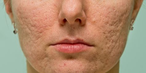 Getting rid of pimples is only the beginning.