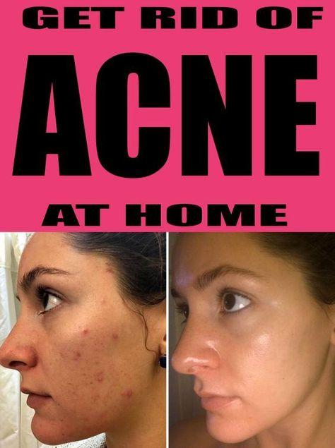 GETTING RID OF ACNE & SCARS FAST  #ACNEremedies #cysticACNE #hormonalACNE #getridofACNE #bodyACNE #applecidervinegarACNE #foreheadACNE