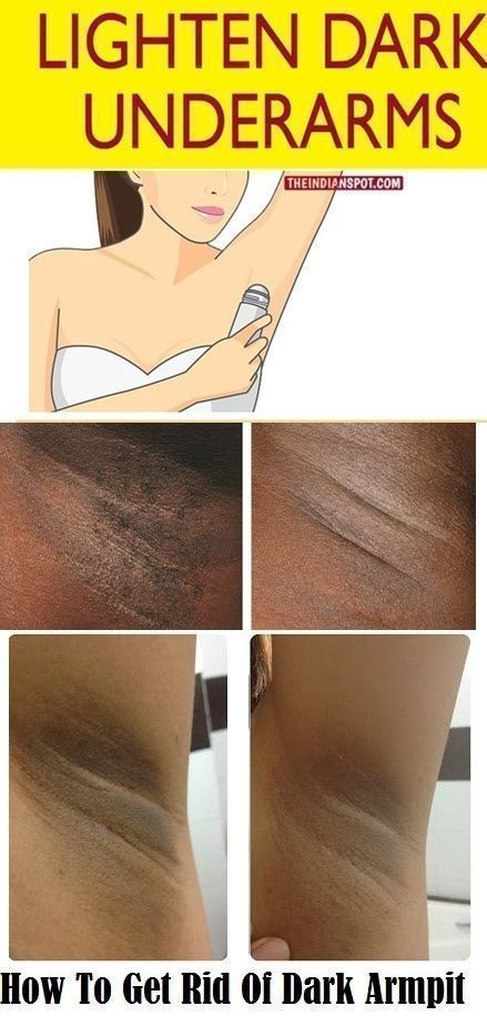 c44a2f41c31cc89573c6a11dfc87bbe7 - How To Get Rid Of Dark Underarms During Pregnancy