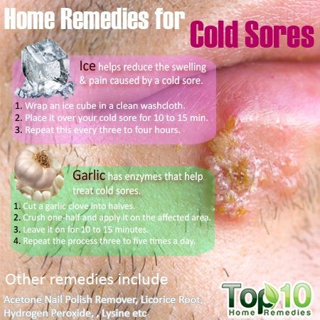 Home Remedies For Cold Sores Cold Home Remedies Cold Sores