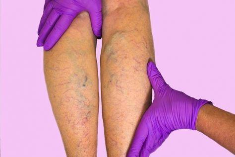 pentru varice tratament naturist boli de varice