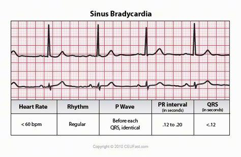 ECG Interpretation - 16 Sinus Bradycardia