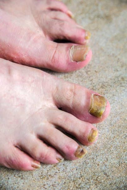 How Long Does It Take To Get Rid Of Fungal Toenail-Best Nail Fungus ...