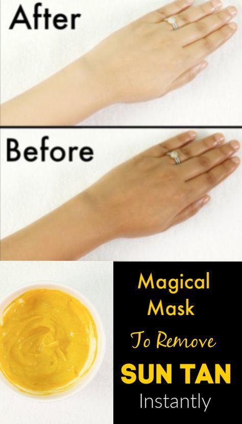 Magical Mask To Remove Sun Tan Instantly From Face Body Facemask Masks Suntan Tanning Facemask Diyremedies Home Tanning Skin Care Sun Tan Tan Removal