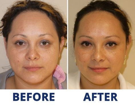 Botox Plymouth Wrinkle Reduction Therapy Devon   Botox At Jesmond Beauty Clinic Newcastle Upon Tyne   Get Rid Of Crow S Feet Without Botox Skin By Lovely   Botox Injections In Leeds Wrinkle Relaxers Good Skin Days   Botox Treatment Bournemouth Crows Feet Before And After   Botox   Botox Cost And Service With Redeem Clinic In Hull   Crow S Feet And Under Eye Lines Rippon Medical Services   Baby Botox Is On The Rise But What Exactly Is It   Botox And Filler Before And After Photo Blog The Green
