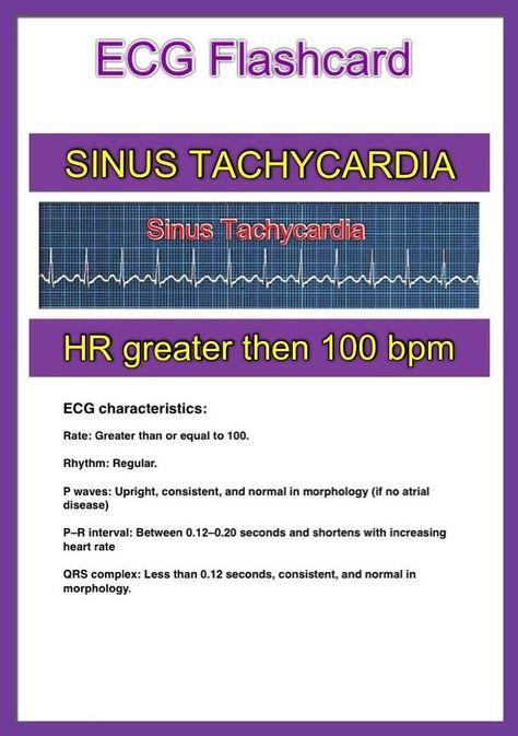 ECG - Sinus Tachycardia
