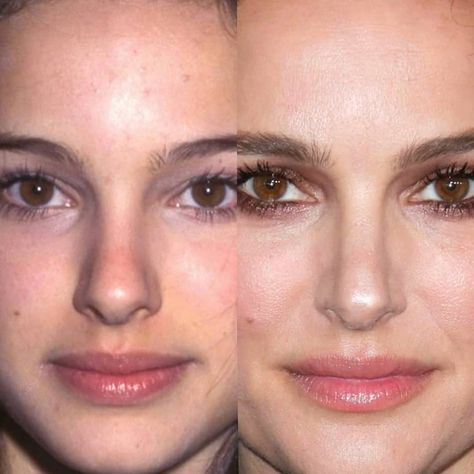 """BeforeAfter on Instagram: """"NATALIE PORTMAN 90's / 2019 #natalieportman #instafashion #instadaily #music #instalike #hollywood #face #instapic #instamood #beauty…"""""""