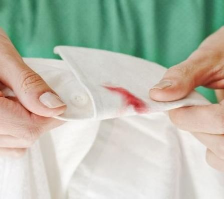 Como Tirar Manchas De Sangue Seco Da Roupa 6 Truques Faceis