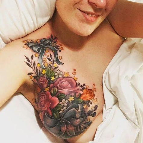 Lateral breast cancer bi