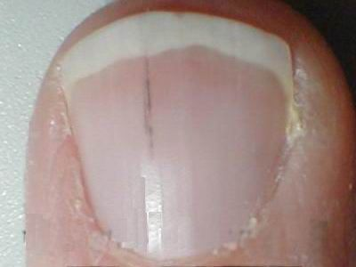 Splinter Fingernails Curious Symptom Caused By A Or Possibly An Indicatio